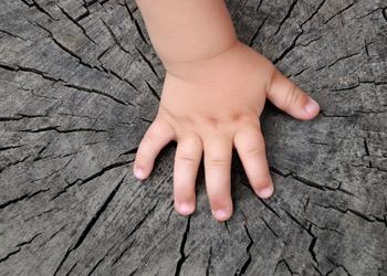 Aussie Tree Solutions Poisoning The Stump